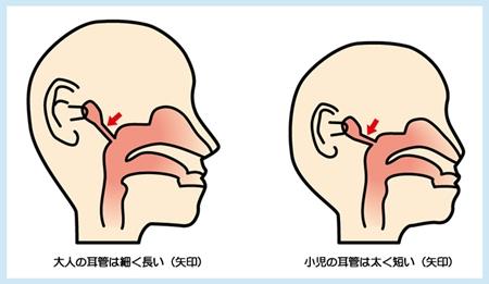 大人と乳幼児の中耳の違い