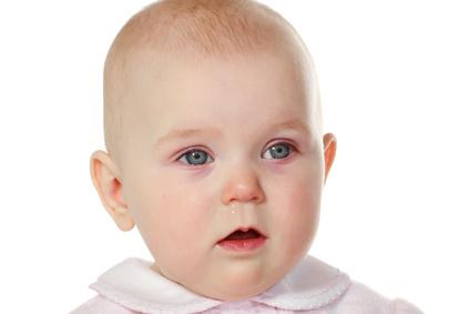 赤ちゃん アレルギー