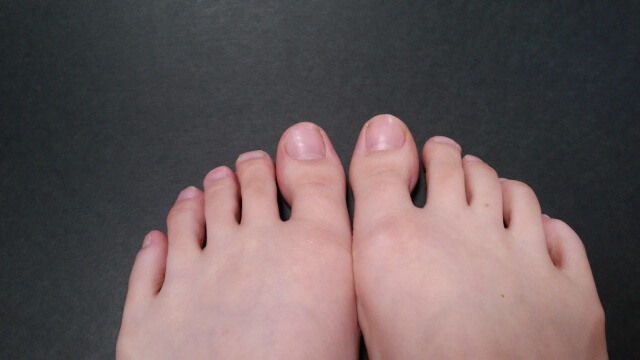 爪水虫(画像)