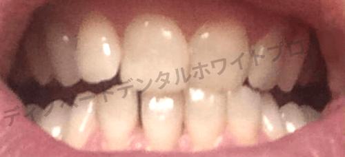 ディノベート使用前の歯