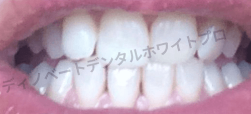 ディノベート使用後の歯